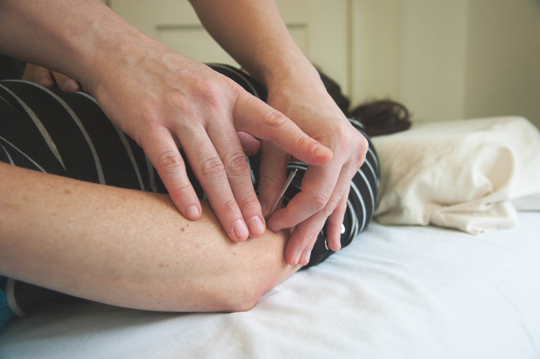 Acupuncture on elbow